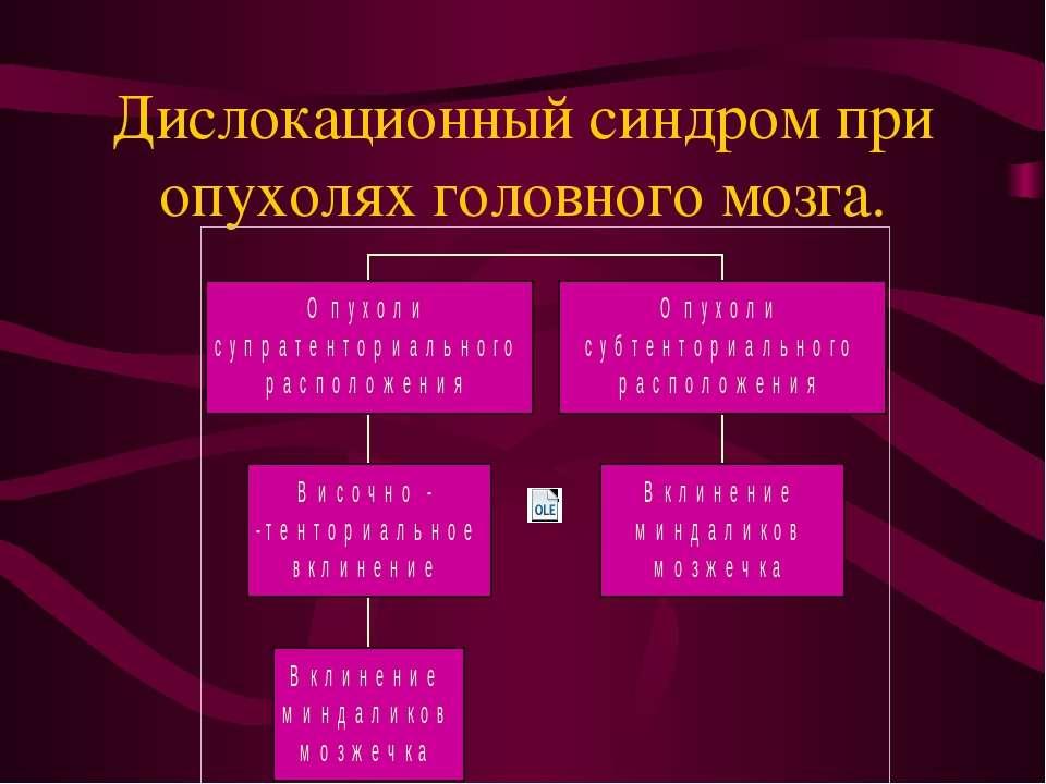 Дислокационный синдром при опухолях головного мозга.
