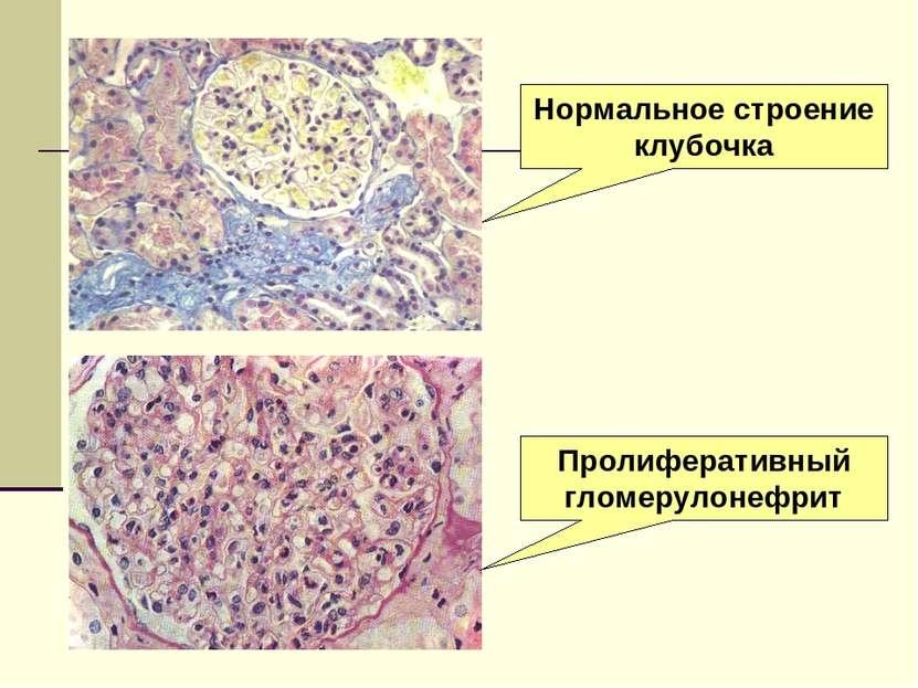 Нормальное строение клубочка Пролиферативный гломерулонефрит