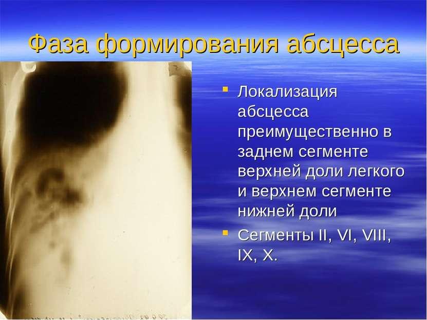 Фаза формирования абсцесса Локализация абсцесса преимущественно в заднем сегм...