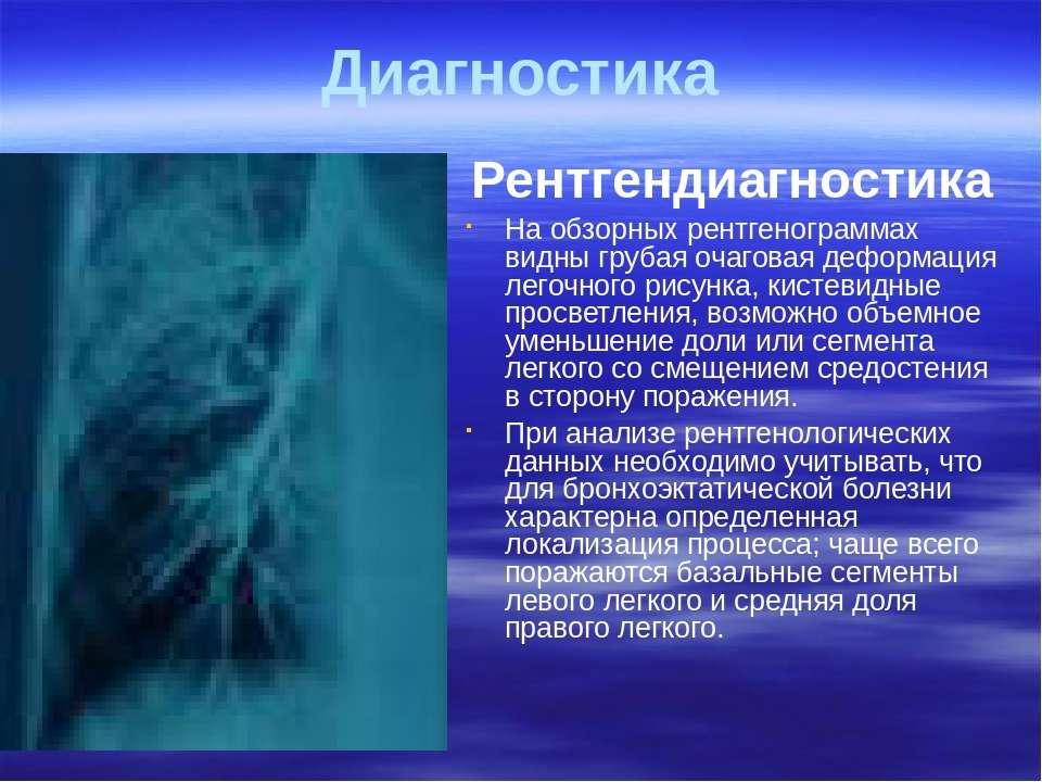 Диагностика Рентгендиагностика На обзорных рентгенограммах видны грубая очаго...