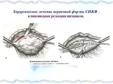 Хирургическое лечение первичной формы СПКЯ – клиновидная резекция яичников.