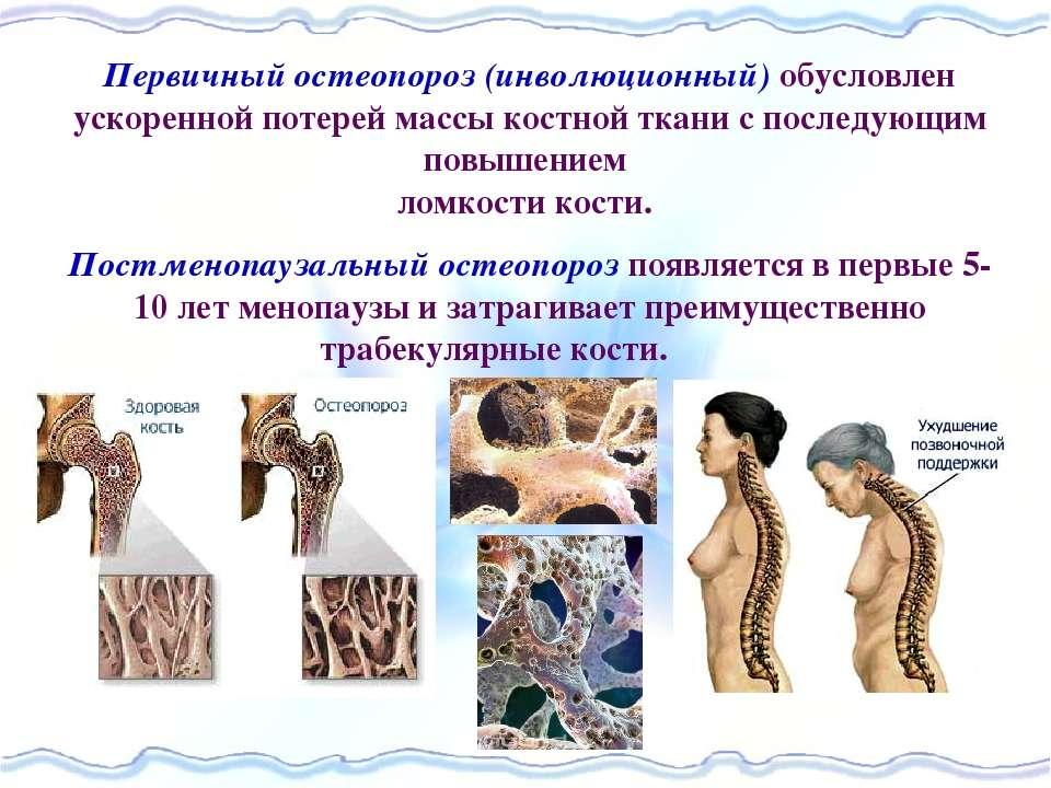 Первичный остеопороз (инволюционный) обусловлен ускоренной потерей массы кост...