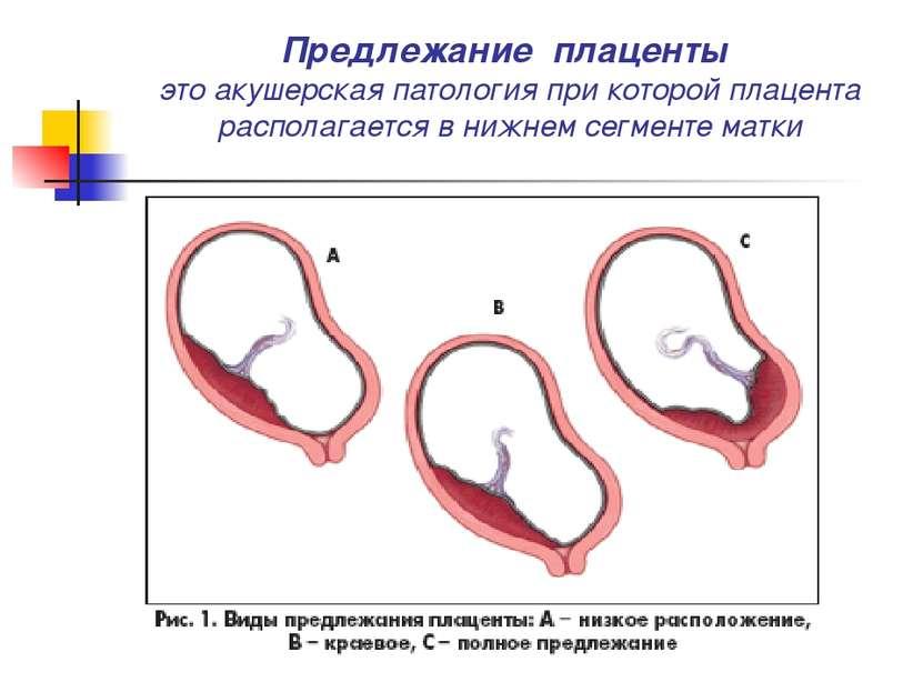 Предлежание плаценты это акушерская патология при которой плацента располагае...