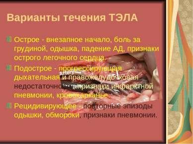 Варианты течения ТЭЛА Острое - внезапное начало, боль за грудиной, одышка, па...