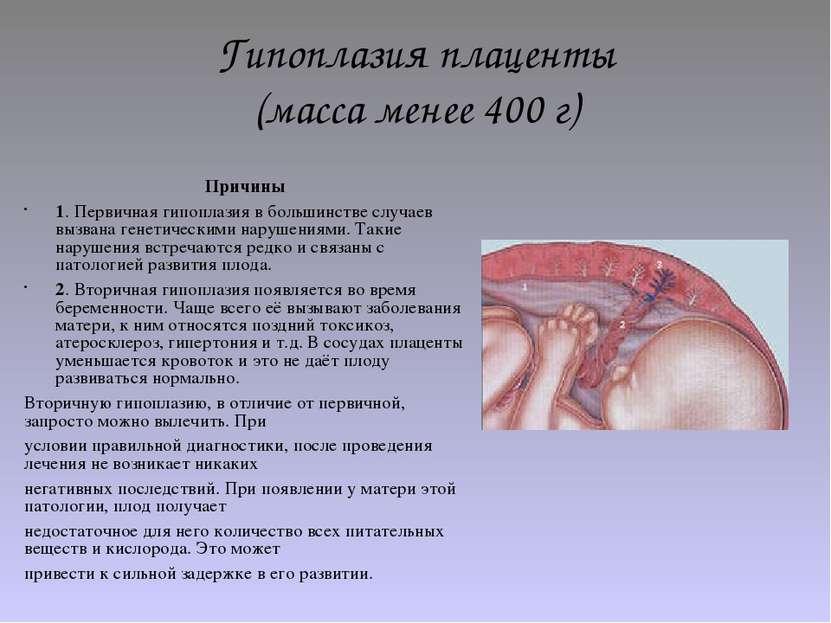 Гипоплазия плаценты (масса менее 400 г) Причины 1. Первичная гипоплазия в бол...