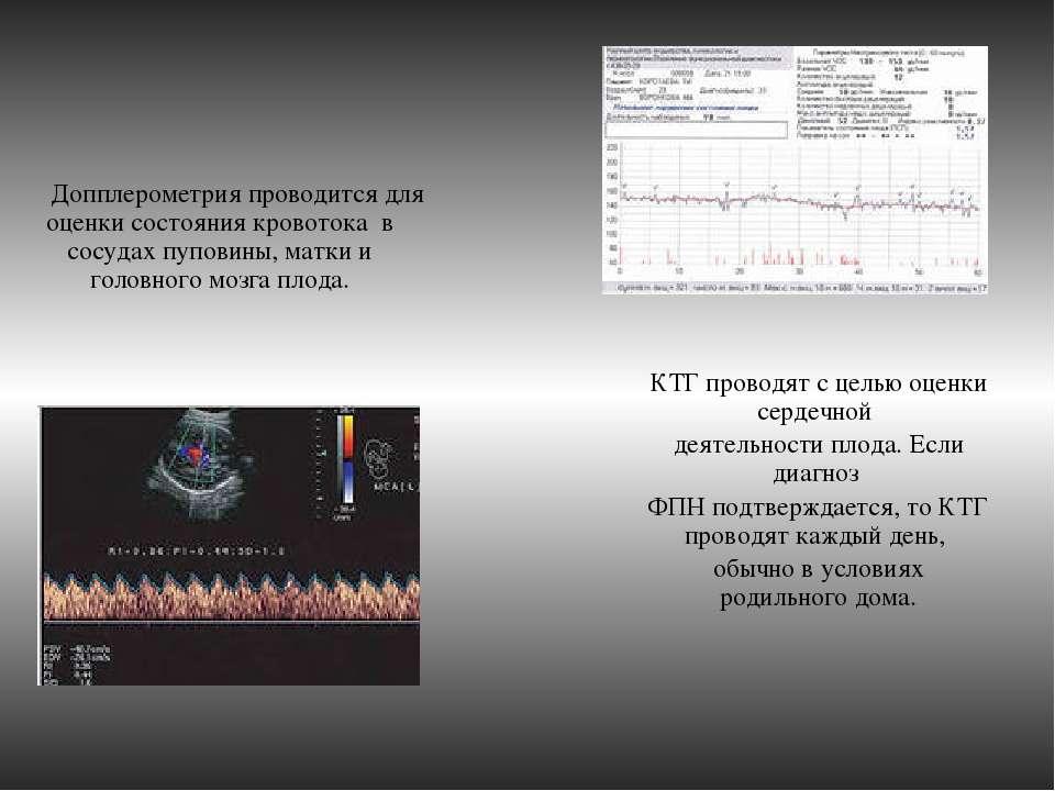 Допплерометрия проводится для оценки состояния кровотока в сосудах пуповины,...