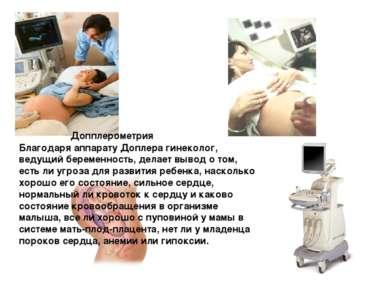 Благодаря аппарату Доплера гинеколог, ведущий беременность, делает вывод о то...