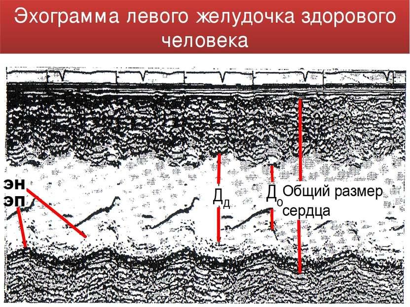 Эхограмма левого желудочка здорового человека