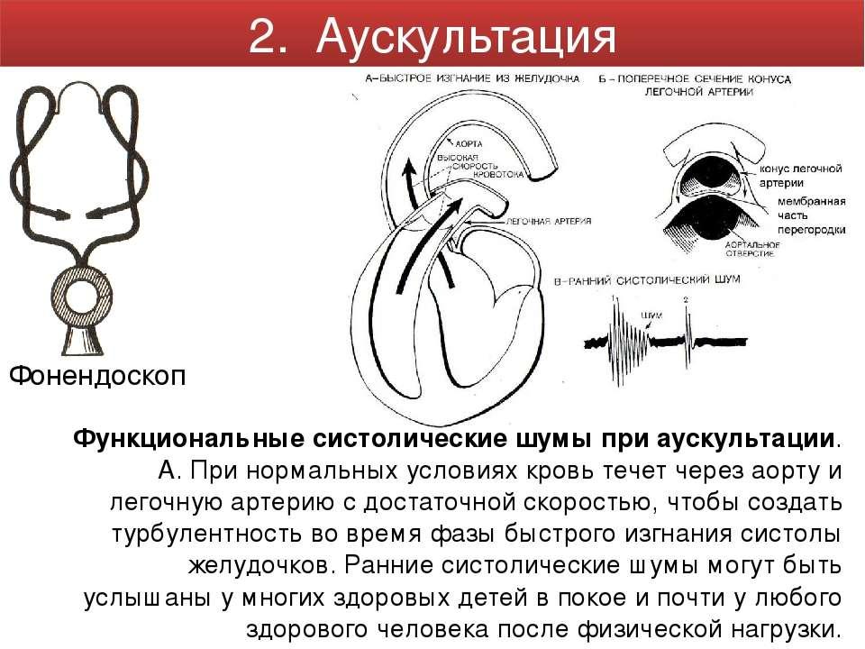 Фонендоскоп Функциональные систолические шумы при аускультации. А. При нормал...