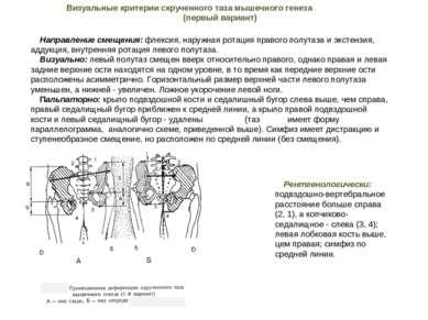 Направление смещения: флексия, наружная ротация правого полутаза и экстензия,...