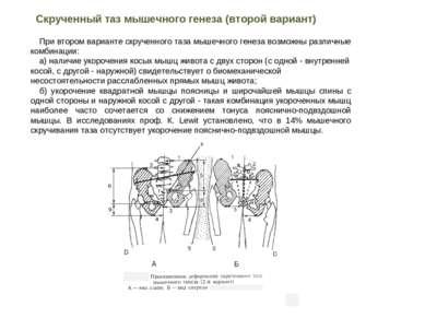 При втором варианте скрученного таза мышечного генеза возможны различные комб...