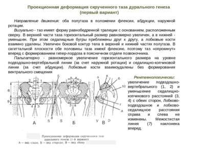 Направление движения: оба полутаза в положении флексии, абдукции, наружной ро...