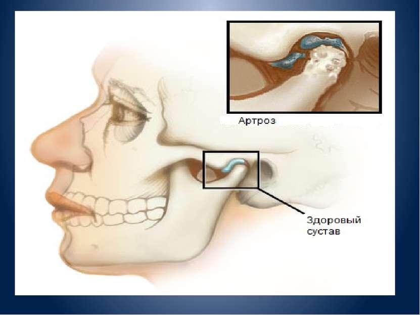 Болезни челюстного сустава симптомы