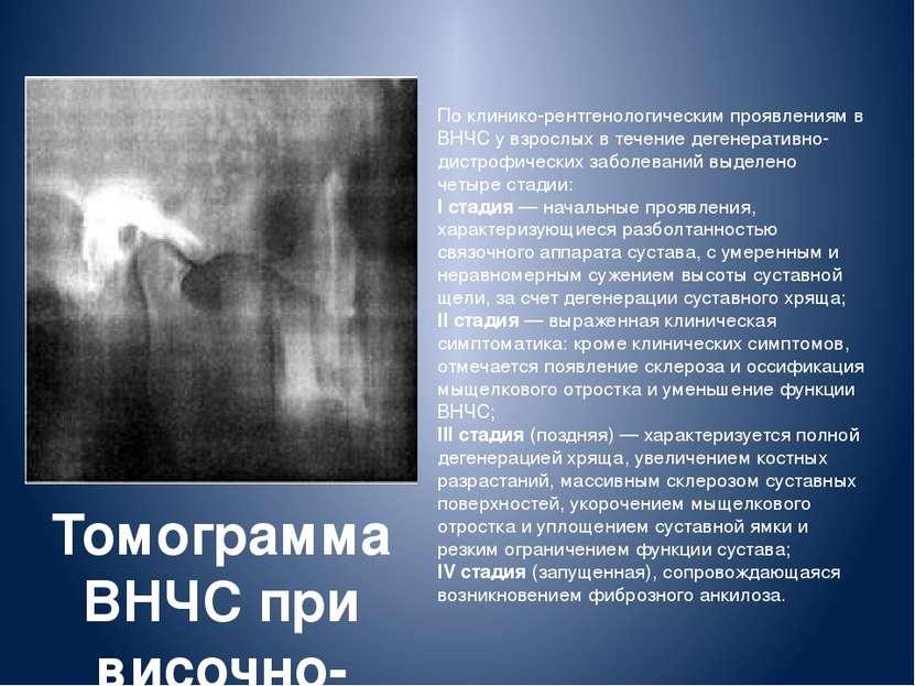 По клинико-рентгенологическим проявлениям в ВНЧС у взрослых в течение дегенер...