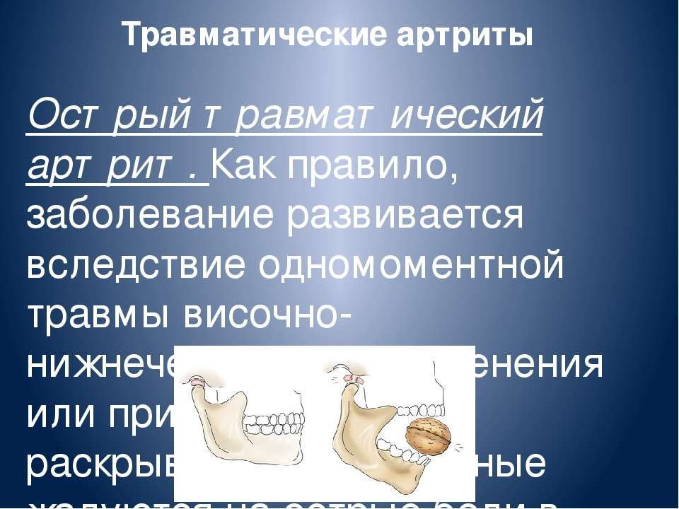 Травматические артриты Острый травматический артрит. Как правило, заболевание...