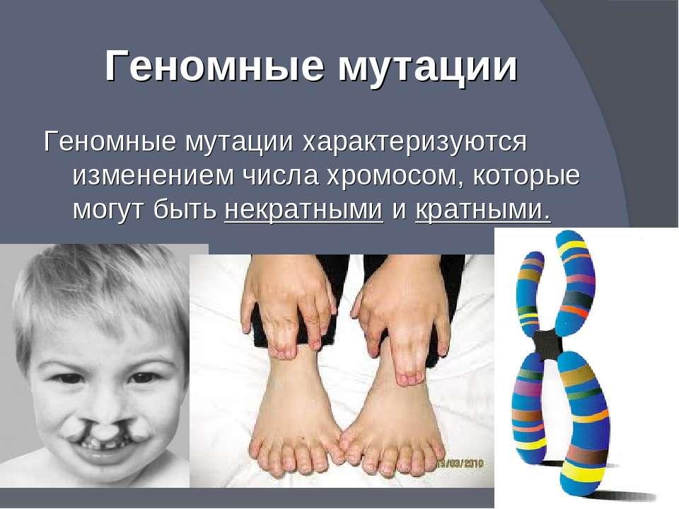 Синдром связанный с изменением числа хромосом