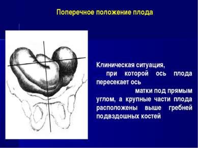 Клиническая ситуация, при которой ось плода пересекает ось матки под прямым у...