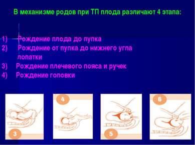 В механизме родов при ТП плода различают 4 этапа: Рождение плода до пупка Рож...