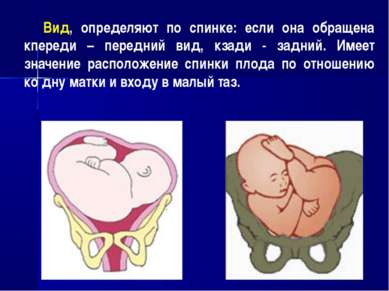 Вид, определяют по спинке: если она обращена кпереди – передний вид, кзади - ...