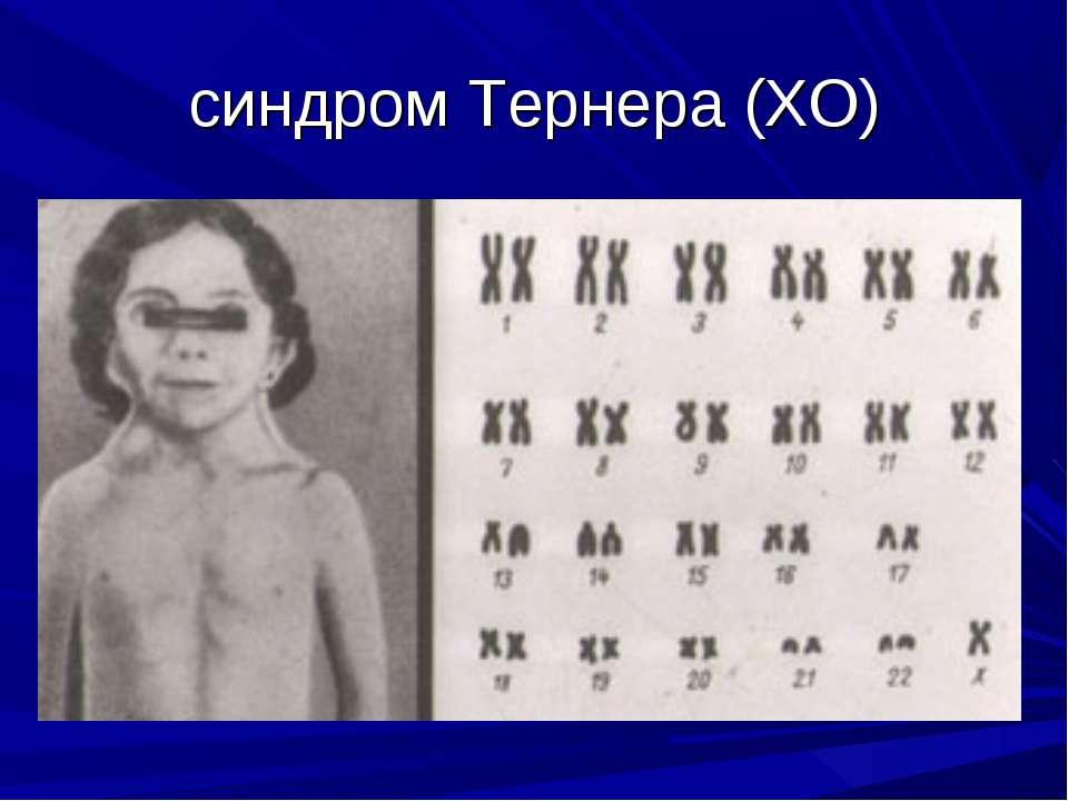 синдром Тернера (ХО)