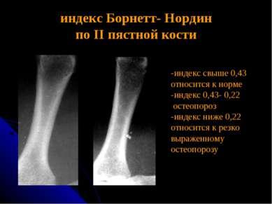 индекс Борнетт- Нордин по II пястной кости -индекс свыше 0,43 относится к нор...