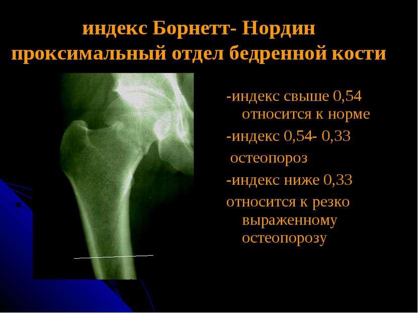 индекс Борнетт- Нордин проксимальный отдел бедренной кости -индекс свыше 0,54...