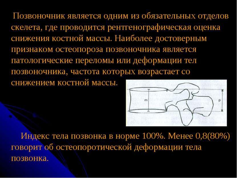 Позвоночник является одним из обязательных отделов скелета, где проводится ре...