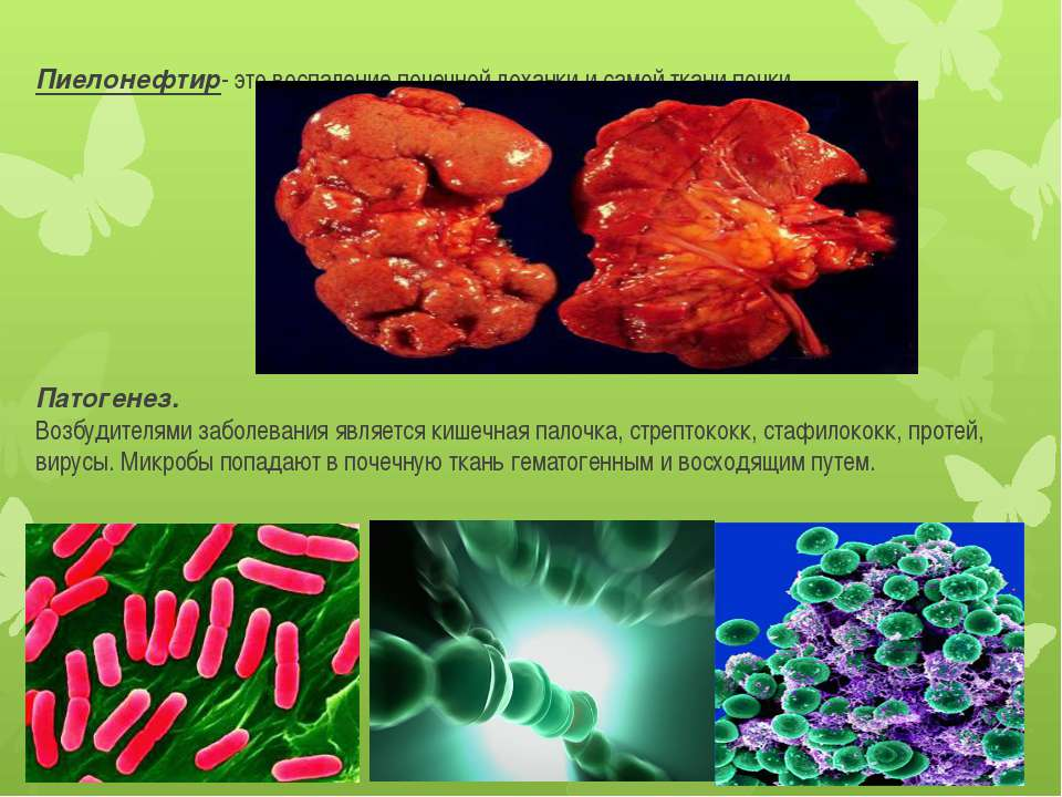 Пиелонефтир- это воспаление почечной лоханки и самой ткани почки. Патогенез. ...