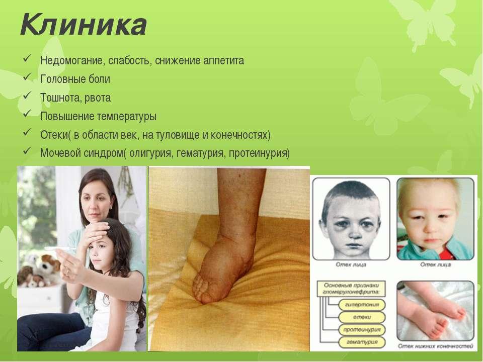 Клиника Недомогание, слабость, снижение аппетита Головные боли Тошнота, рвота...