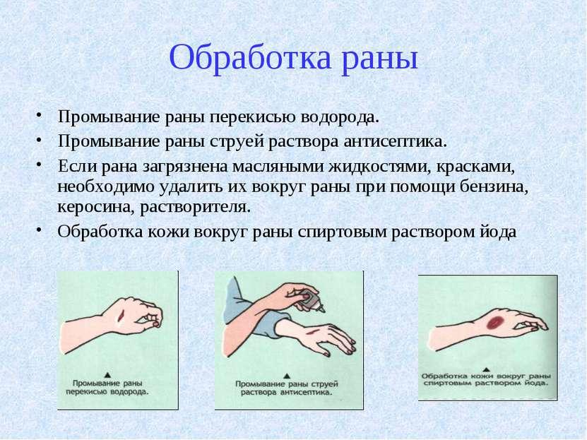 Как обработать открытую рану перекисью водорода