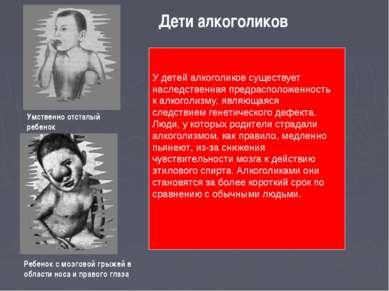 Дети алкоголиков Умственно отсталый ребенок Ребенок с мозговой грыжей в облас...