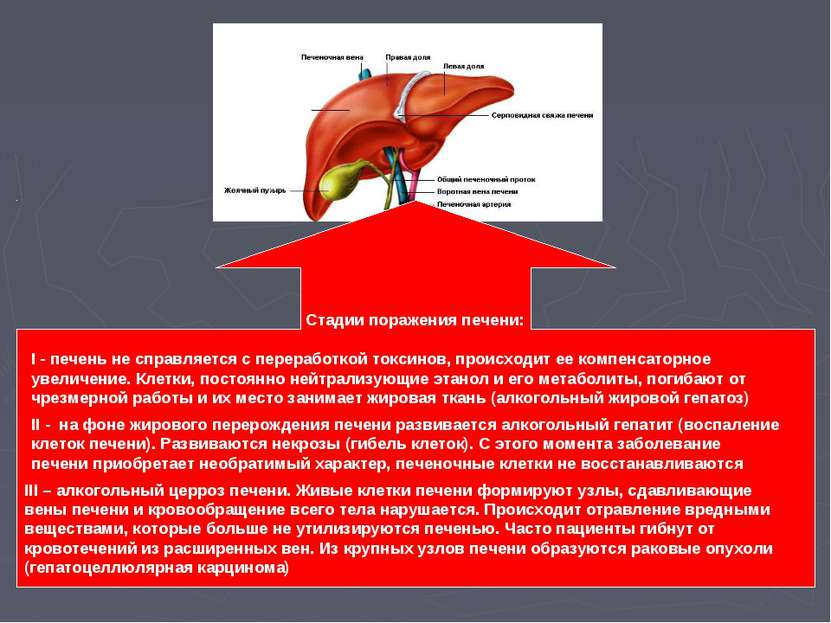 Стадии поражения печени: I - печень не справляется с переработкой токсинов, п...