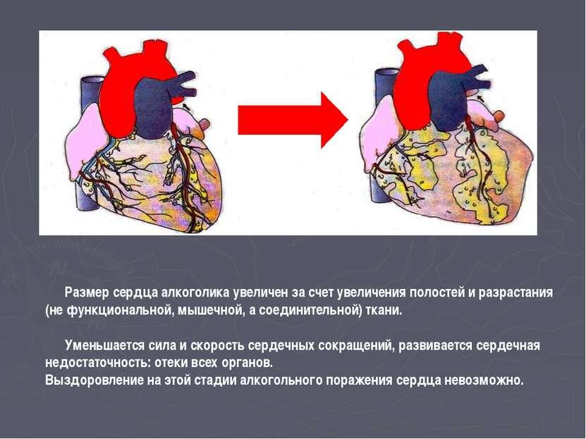 Размер сердца алкоголика увеличен за счет увеличения полостей и разрастания (...