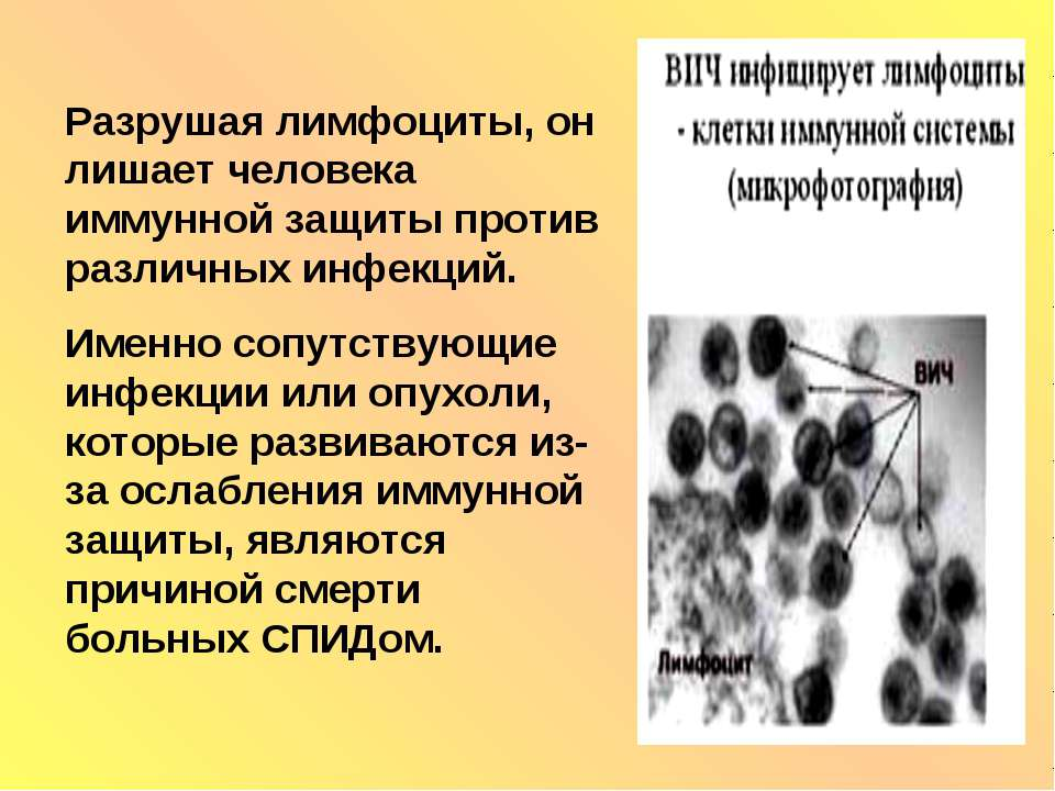Разрушая лимфоциты, он лишает человека иммунной защиты против различных инфек...