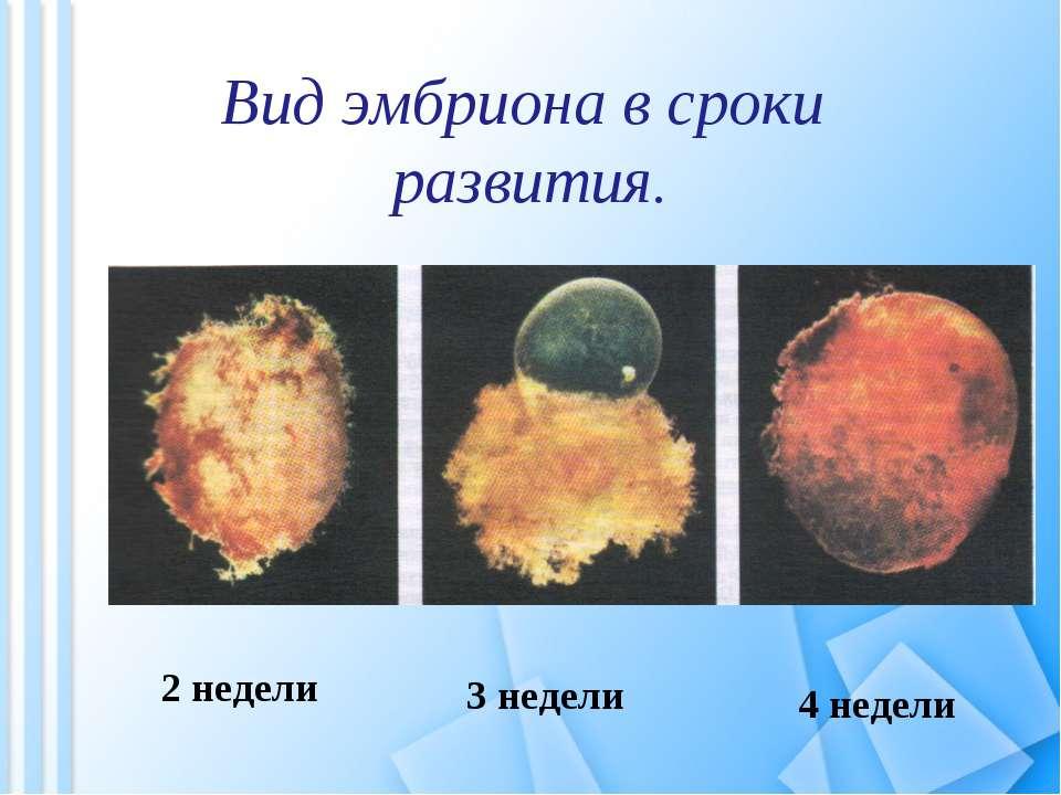 Вид эмбриона в сроки развития. 2 недели 3 недели 4 недели
