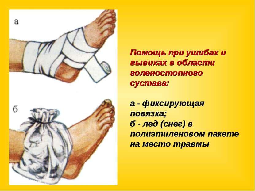 Помощь при ушибах и вывихах в области голеностопного сустава: а - фиксирующая...