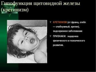 Гипофункция щитовидной железы (кретинизм) КРЕТИНИЗМ (от франц. cretin — слабо...