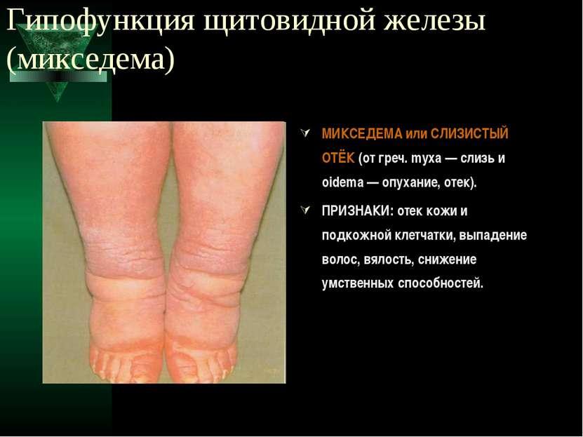 Гипофункция щитовидной железы (микседема) МИКСЕДЕМА или СЛИЗИСТЫЙ ОТЁК (от гр...