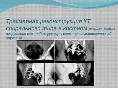 Трехмерная реконструкция КТ спирального типа в костном режиме. Видны разрушен...