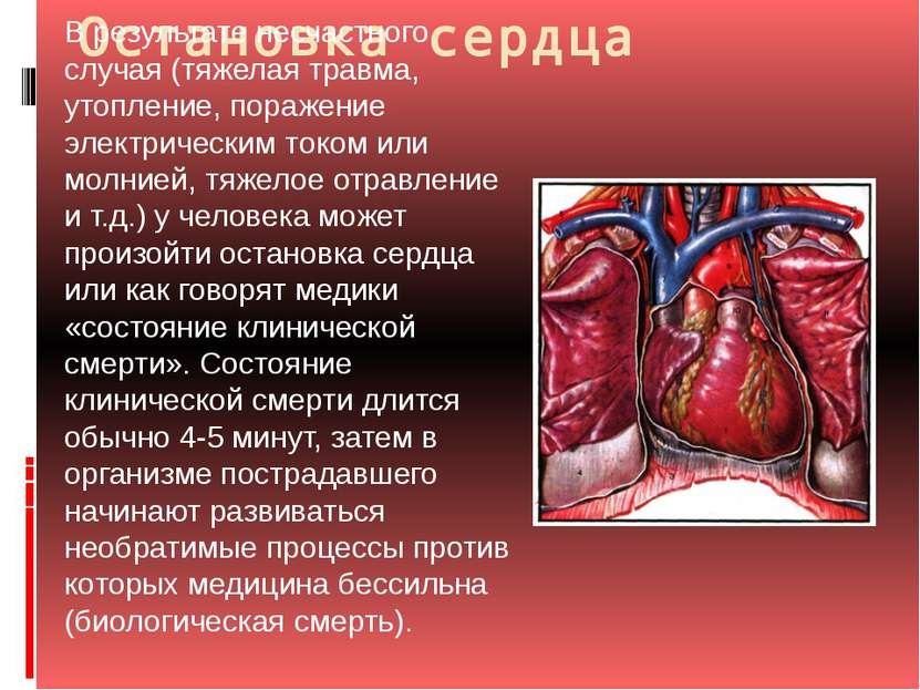 Остановка сердца В результате несчастного случая (тяжелая травма, утопление, ...