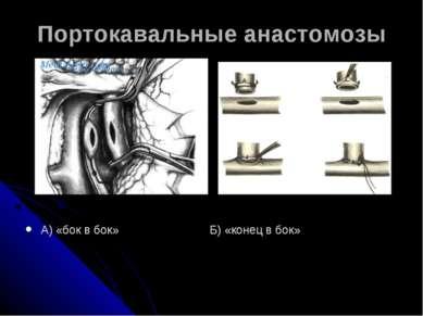 Портокавальные анастомозы А) «бок в бок» Б) «конец в бок»