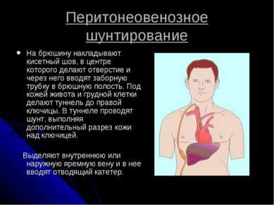 Перитонеовенозное шунтирование На брюшину накладывают кисетный шов, в центре ...