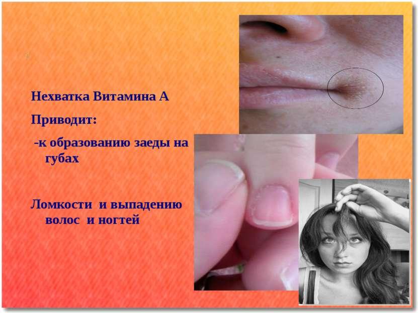 Нехватка Витамина А Приводит: -к образованию заеды на губах Ломкости и выпаде...