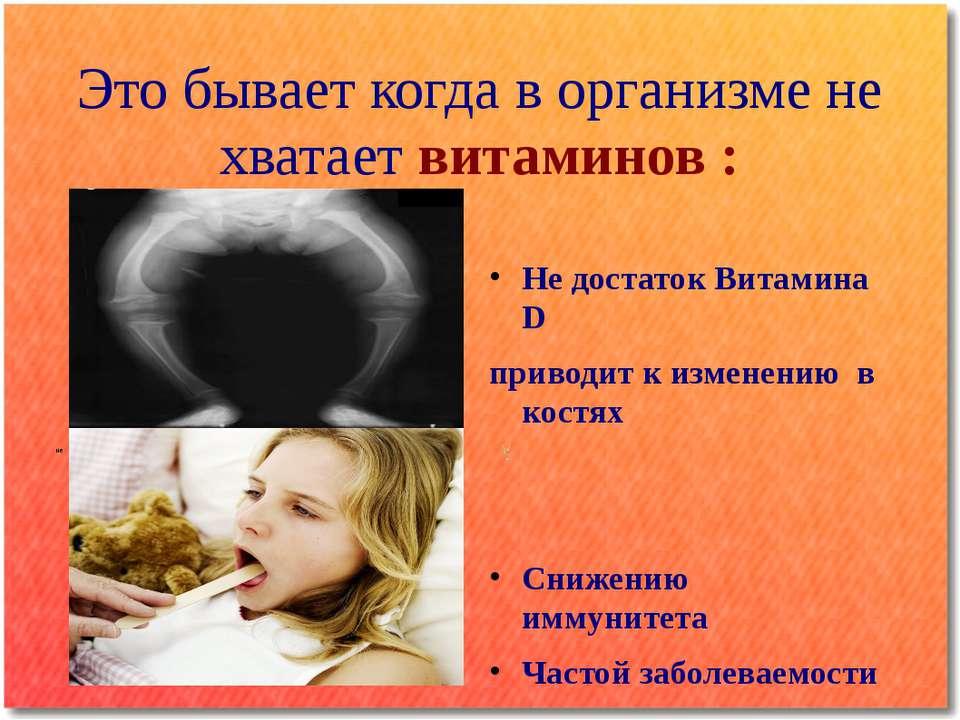 Это бывает когда в организме не хватает витаминов : Не достаток Витамина D пр...