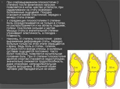 При слабовыраженном плоскостопии (I степени) после физических нагрузок появля...