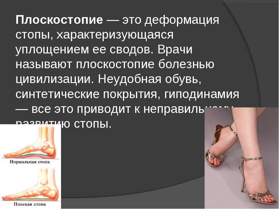 Плоскостопие — это деформация стопы, характеризующаяся уплощением ее сводов. ...