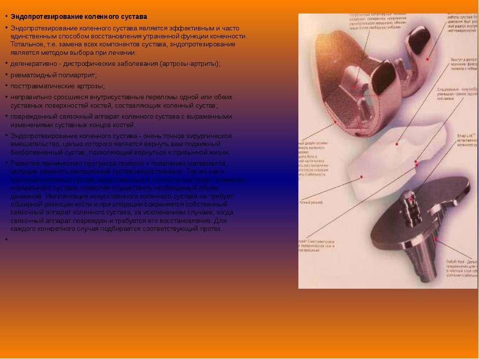 Эндопротезирование коленного сустава Эндопротезирование коленного сустава явл...