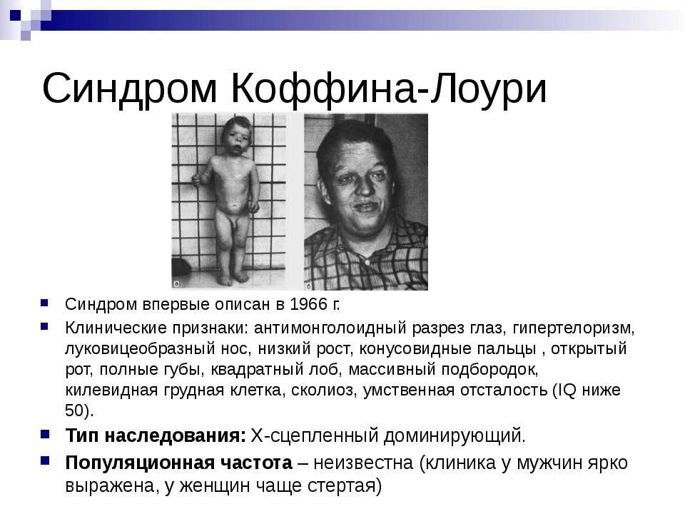 Синдром Робинова фото