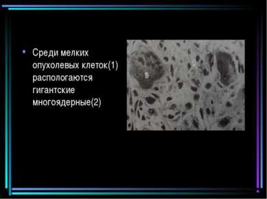 Среди мелких опухолевых клеток(1) распологаются гигантские многоядерные(2)