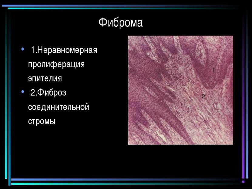 Фиброма 1.Неравномерная пролиферация эпителия 2.Фиброз соединительной стромы